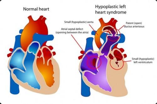 Om medfødt hjertesykdom