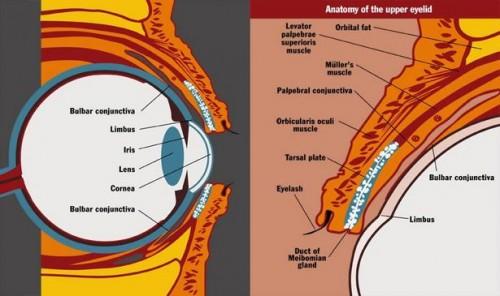 Hva er Trachoma?