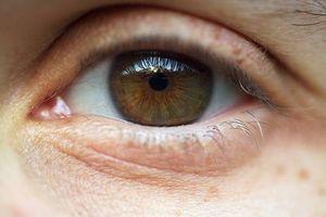 Hva er årsakene til øyelokk Misfarging?
