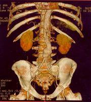 Symptomer på en sprukket abdominal aortaaneurisme