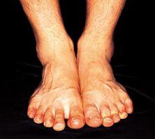 Hva er årsaken til rød hud på føtter og ankler?