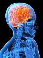 Tegn og symptomer på en Vestibulær migrene