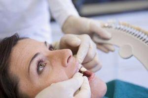 Dental Crown Sementtyper
