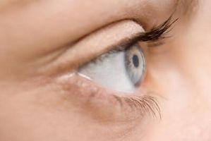 Hva er årsaken til Spots Etter et kamera Blinker eller Bright Light?