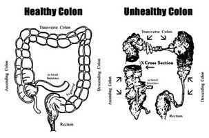Hvordan rense kolon Med Natural Foods