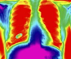 Faktorer som påvirker oksygenmetning