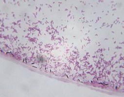 Forskjeller i Bacillus & Clostridium