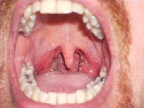Halsinfeksjon bakterier
