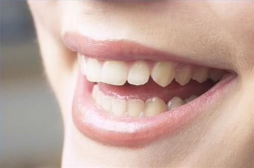 Hvordan unngå flekker Dental finer