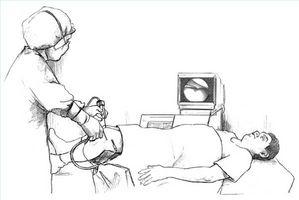 Hvordan er Artroskopisk Knee Surgery utført?
