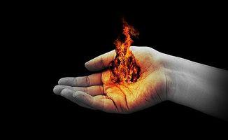 Hvordan behandle mild Burns