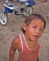 Mitokondrielle sykdommer hos barn