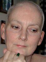 Alopecia forårsaket av psoriasis