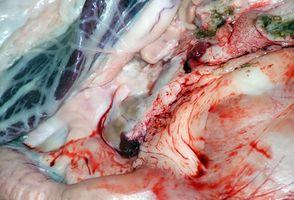 Hva er Erytematøse Mucosa i endetarmen?