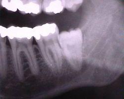 Hva er problemene visdom tennene er fjernet?