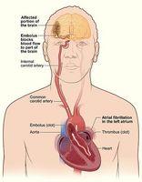 Hvordan kan et hjerneslag skje?