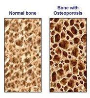 Hva er den viktigste årsaken til osteoporose?