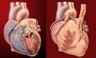 Arvelig hjerteproblemer