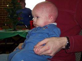 Forebygge eksem hos babyer
