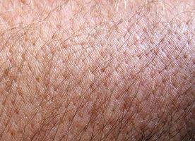 Hva Human Body Systems er berørt når huden er skadet?