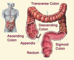 Venstre Colon Cancer Symptomer