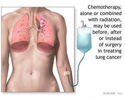 Hva er cellegiftbehandling?