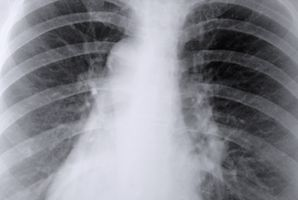 Lung Fungus Symptomer