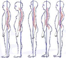 Dårlig holdning Effekter på leddene