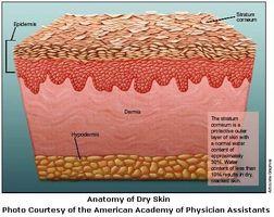 Hvordan å behandle tørr hud med naturen