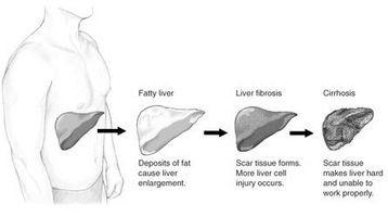Stadier av akutt leversvikt