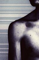 Skulder senebetennelse & Neck Pain