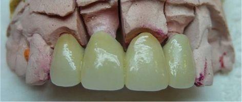 Hvordan ta vare på en tannbro
