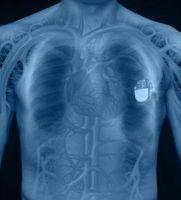 Typer av Pacemaker Sensorer