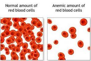 Hvordan påvirker anemi barn og tenåringer?