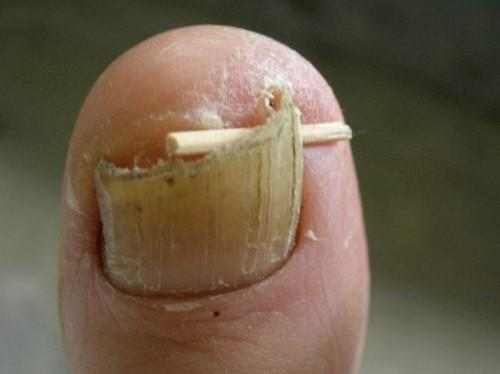 Inngrodd tånegl Remedy