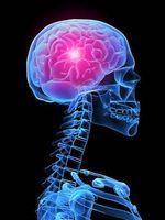 Hvordan blir jeg kvitt en migrene hodepine Do?