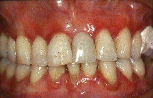 Hvordan unngå gingivitt