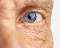 Hvordan hengende øyelokk påvirke synet