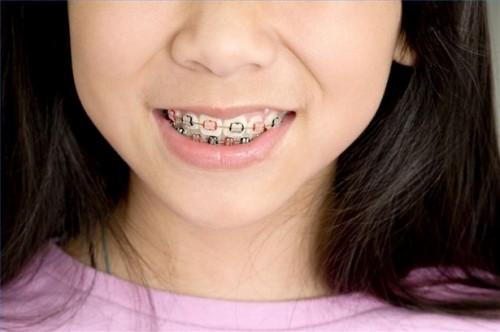 Hvordan pusser tennene med tannregulering På