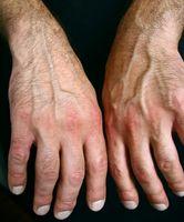 Hvorfor bruke Hånd splinter for Osteoarthritis?