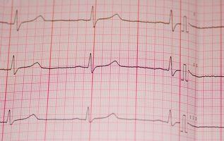 Hvordan koble EKG Leads