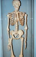 Slik Care for en Nondisplaced Sternal Fracture