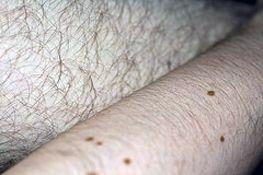 Slik behandler Folliculitis