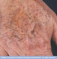 Enkleste metoden for å fjerne Ansikts Age Spots