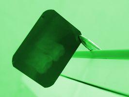 Effekten av stråling i odontologi