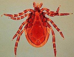 Hva er Lymes sykdom?