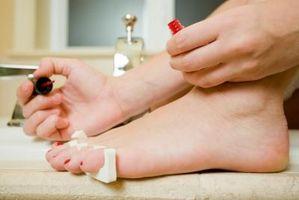 Forskjellen mellom negl og tånegl sopp