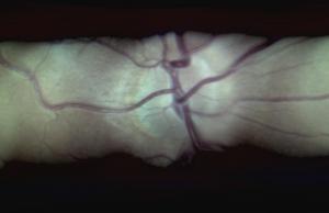 Hva er en Ophthamoloscope brukes til?