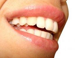 Hvordan å holde tennene friske og sterke