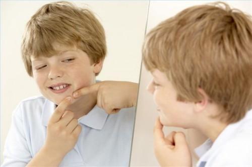 Hvordan behandle Teen Acne